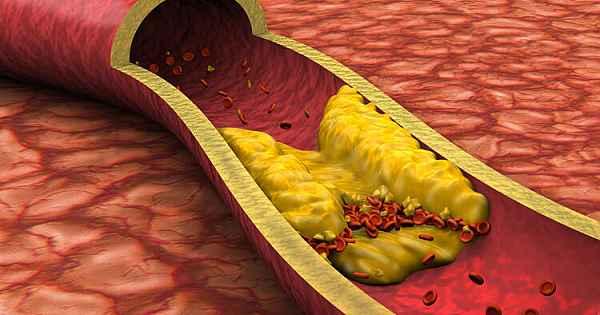 Bu besinler hem vücudu hem de damarları tertemiz yapıyor…