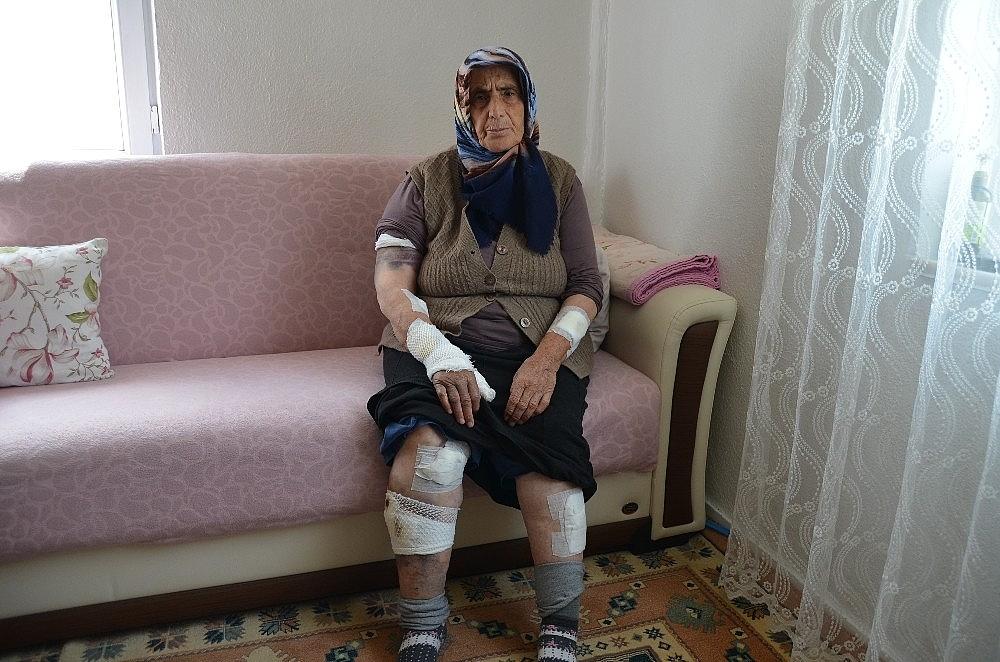 2019/04/kopeklerin-saldirdigi-yasli-kadini-olumden-komsulari-kurtardi-20190425AW68-1.jpg