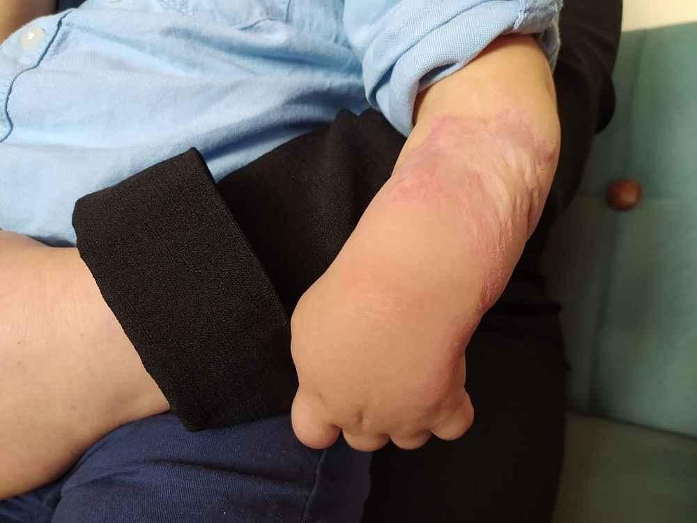 2020/01/minik-isanin-kolundaki-yanik-elini-kullanamaz-hale-getirdi---bursa-haberleri-20200116AW91-3.jpg