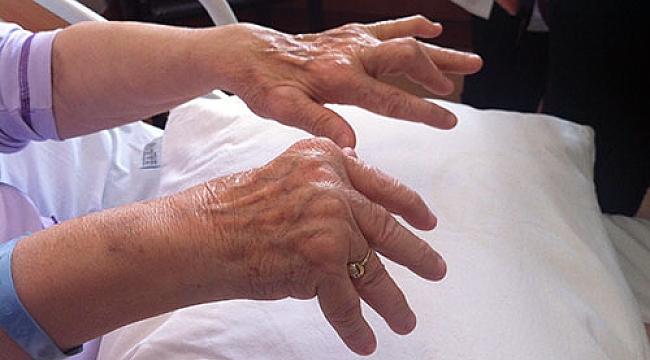 Romatoid artrit rahatsızlığında altın döneme dikkat