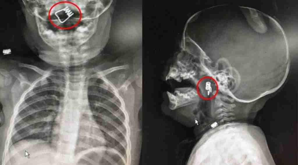 1 yaşındaki bebeğin boğazında tespit edildi