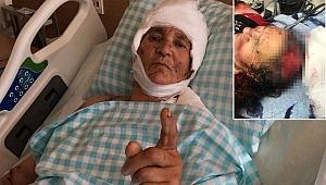 Köpeklerin saldırısında yaralanan kadın: