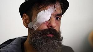 Plastik mermiyle vuruldu, bir gözünü kaybetti