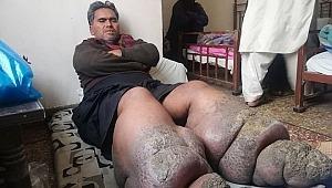 Enfeksiyon yüzünden ayakları şişen adamı görenler dehşete düşüyor