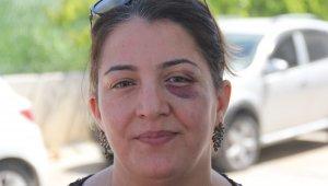 İnsanlık ölmüş... Yaralıya müdahale eden hemşire bu hale getirildi