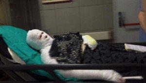 İspirto ile kulak kıllarını temizlerken felçli eşini ve kendisini yaktı - Bursa Haberleri