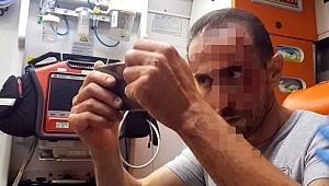 Bursa'da geçirdiği trafik kazası sonucu ambulansta kanlı yüzünü çeken yaralı herkesi şoke etti!
