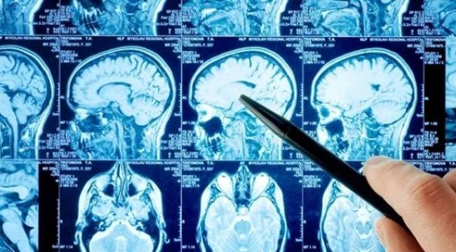 Doktorlar bile şaştı kaldı... 60 yıl beyninin yarısı olmadan yaşadı