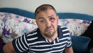 """Kafede saldırıya uğrayan gazi: """"Gazilik onuruna yapılmış hakaret"""" - Bursa Haberleri"""