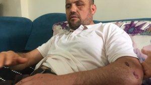 Valinin sahip çıktığı gazinin 4 kaburgası kırık çıktı - Bursa Haberleri