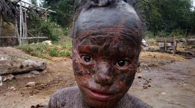 10 yaşındaki çocuğun cildini gören kahroluyor