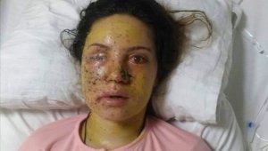 Eşi tarafından vurulan genç kadın gözünü kaybetti