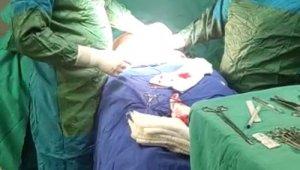 Özel hastanede 'yetkisiz estetik ameliyatı'na suçüstü kamerada
