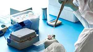 Fransız doktor koronavirüsün ilk defa bu kadar net ve kapsamlı görüntüsünü paylaştı