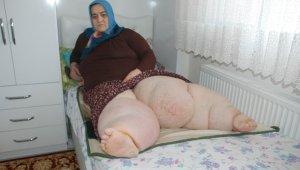 Trafik kazası sonrasında bacakları şişen kadın yaşam savaşı veriyor