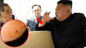 Haftalar sonra ortaya çıkan Kim'in, bileğindeki yara detayı dikkat çekti