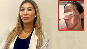 Kimyasal cilt temizleme losyonunu kullananların yüzleri yandı