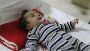 Suriyeli Yusuf bebek Türkiye'de tedavi ediliyor