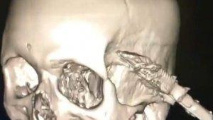 Uyuduğu sırada koltuktan düşen şahsın başına soba maşası saplandı