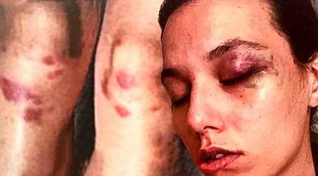 Ünlü oyuncunun şiddetine maruz kalan kadının darp izleri kan dondurdu
