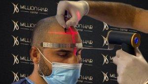 Million Hair Center CEO' su Fatih Köse: ''Saç ekiminin en önemli noktaları ön saç çizgisi ve doğal görünümdür''