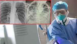 """Koronavirüsün etkisi röntgen filmlerine de yansıdı: """"Sigara tiryakisinden kat kat daha kötü"""""""