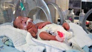 Parmak bebek ayaksız olarak dünyaya geldi