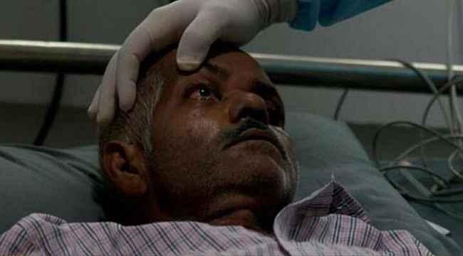 Tek göz çıkarılırsa hayatta kalınıyor... Kara mantar hastalarının yeni fotoğrafları